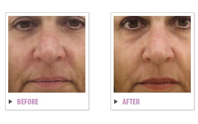 Complete Skin Rejuvenation Before and After