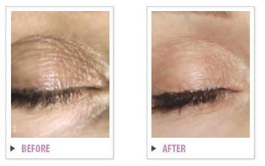 Complete Skin Rejuvenation Before & After