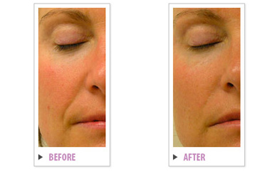 Hydrafacial treatment Brampton