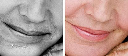 dermaroller-scar-reduction