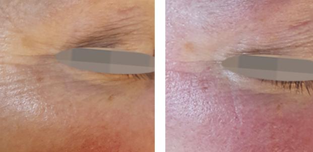 Laser Hair Removal Complete Skin Rejuvenation Toronto